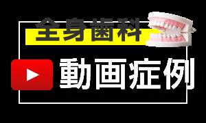 動画で見る中垣歯科医院の症例